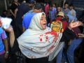 Day of rage: At least 60 people were killed in violent clashes between Morsi supporters and security forces on the 'Day of Rage', August 16. A woman with blood on her clothes is shown screaming for help in Ramses Square, in downtown Cairo, Egypt.